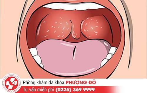 Bệnh lậu ở miệng có biểu hiện như thế nào?