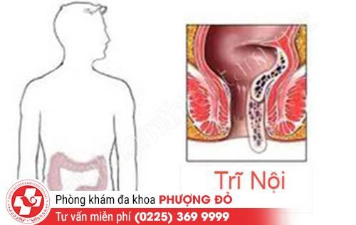 Bệnh trĩ nội là bệnh gì?