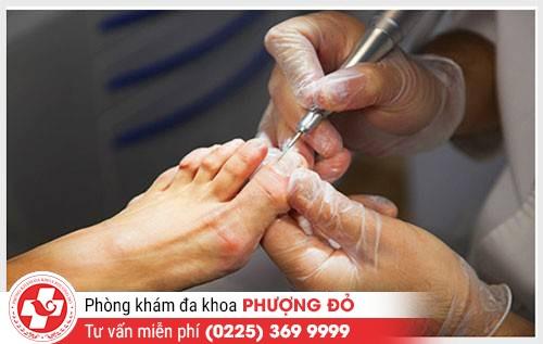 nhung-trieu-chung-cua-benh-cham-to-dia-can-luu-y-3