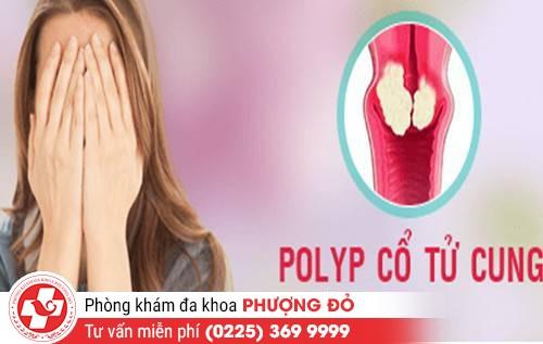 Những dấu hiệu polyp cổ tử cung ở nữ giới