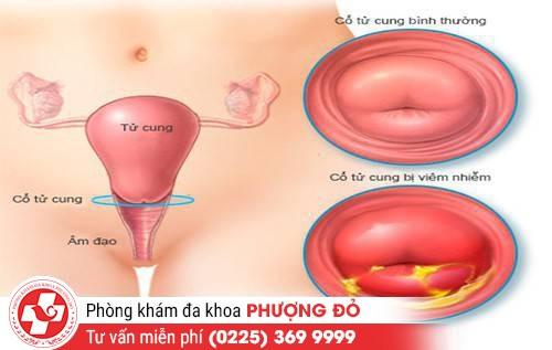 Nguyên nhân gây viêm loét cổ tử cung