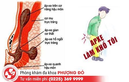 Những nguyên nhân gây bệnh áp-xe quanh hậu môn