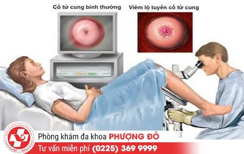 Phương pháp điều trị viêm lộ tuyến cổ tử cung hiệu quả
