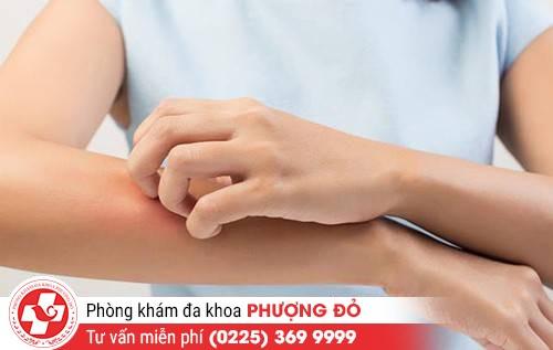 Một số triệu chứng của bệnh viêm da dị ứng cần lưu ý