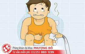 mot-so-benh-hau-mon-thuong-gap-nguyen-nhan-va-cach-chua
