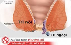 nhung-dieu-can-biet-ve-benh-tri